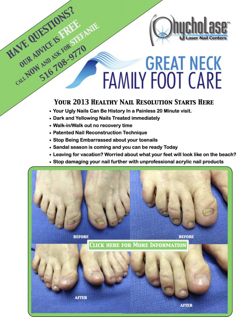 Laser Nail Center Great Neck